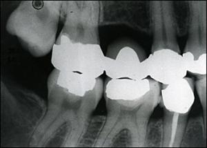 teeth_defective